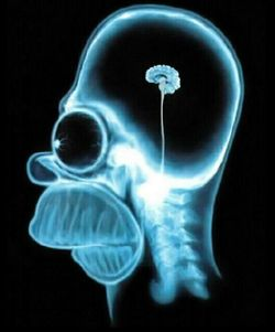 X-ray scan of Homer Simpson